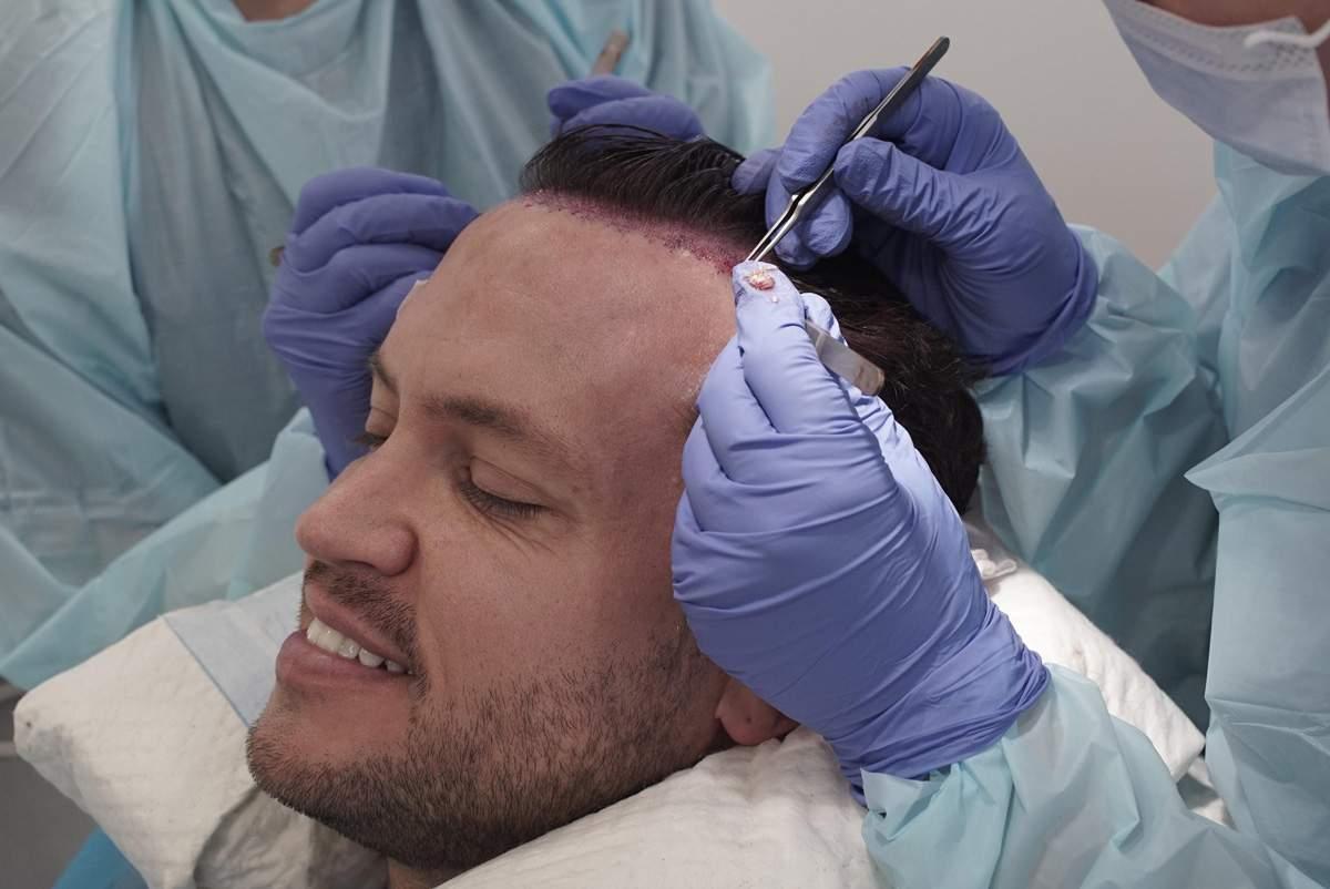 Ön Saç Çizgisi Düzeltme