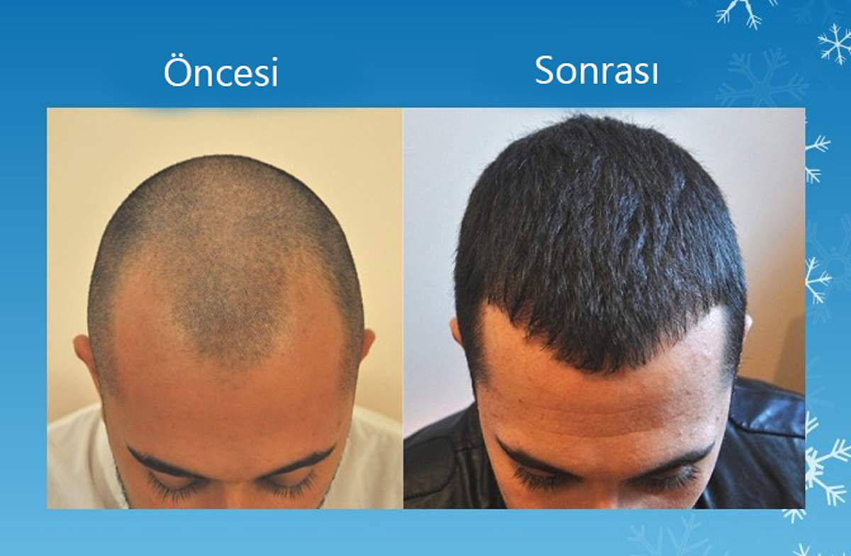 Perkutan Saç Ekim Tekniği