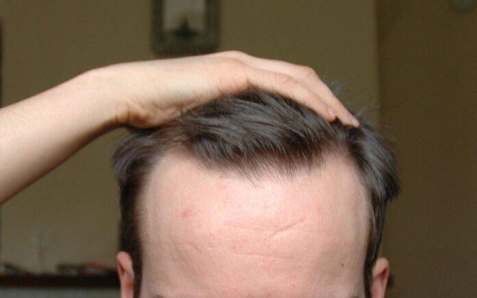 Saç Çizgisi Düzeltme