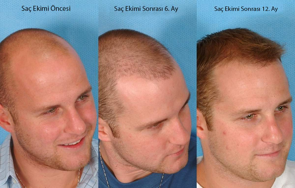 Saç Ekimi Fotoğrafları Örnekleri