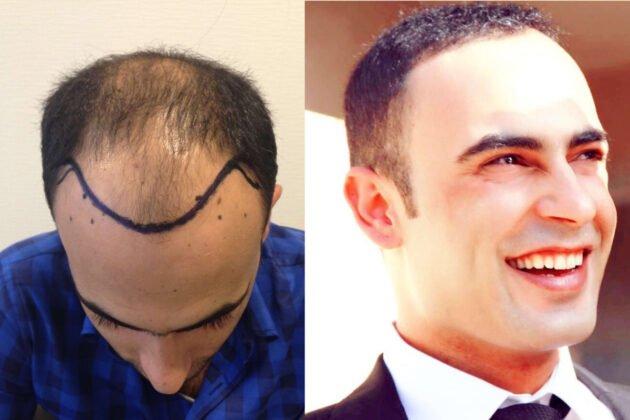 Saç ekimi ve Sonrası Erkek Fotoğrafları 1