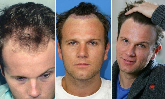 Saç ekimi ve Sonrası Erkek Fotoğrafları 2