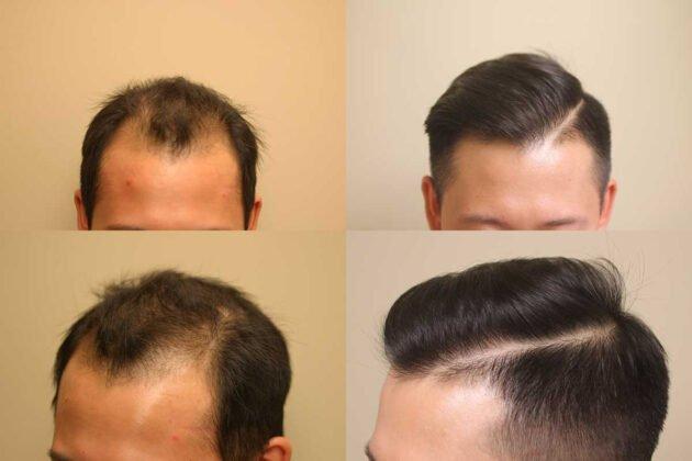 Saç ekimi ve Sonrası Erkek Fotoğrafları 5