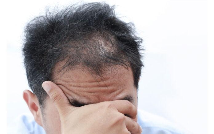 Dökülen Saçlar Nasıl Çıkar?