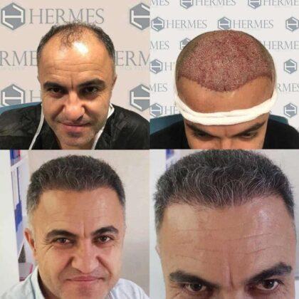 Hermest Saç Ekimi Öncesi ve Sonrası 1