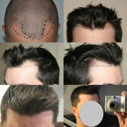 Muttalip Keser Saç Ekimi Öncesi ve Sonrası 1