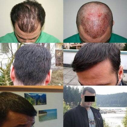 Muttalip Keser Saç Ekimi Öncesi ve Sonrası 2