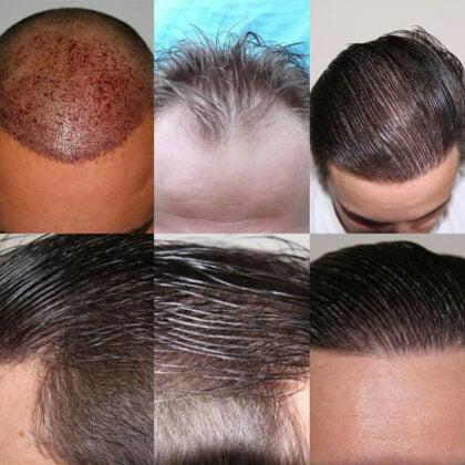 Muttalip Keser Saç Ekimi Öncesi ve Sonrası 3