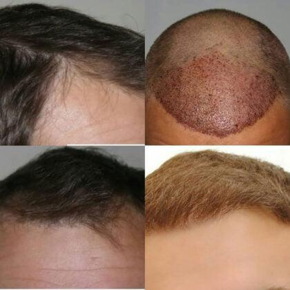 Muttalip Keser Saç Ekimi Öncesi ve Sonrası 4