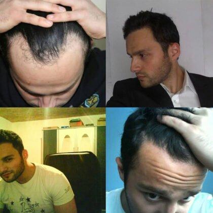 Muttalip Keser Saç Ekimi Öncesi ve Sonrası 5