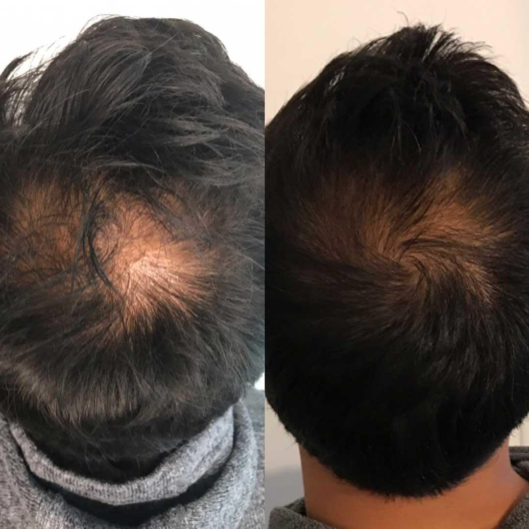 Saç Mezoterapisi Saç Çıkartır Mı?