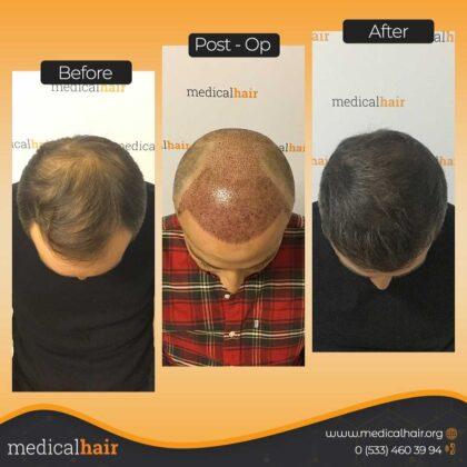 Sibel Ulusan Saç Ekimi Öncesi ve Sonrası 1