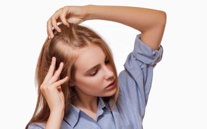 Kadınlarda Erkek Tipi Saç Dökülmesi