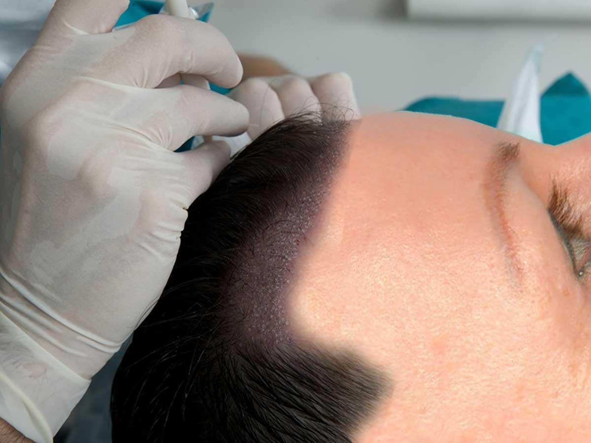 Kadınlarda Erkek Tipi Saç Dökülmesi Nasıl Tedavi Edilir?