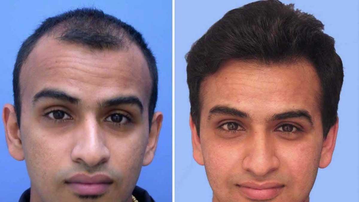 Saç Ekimi Sonrasında İyileşme Süreci