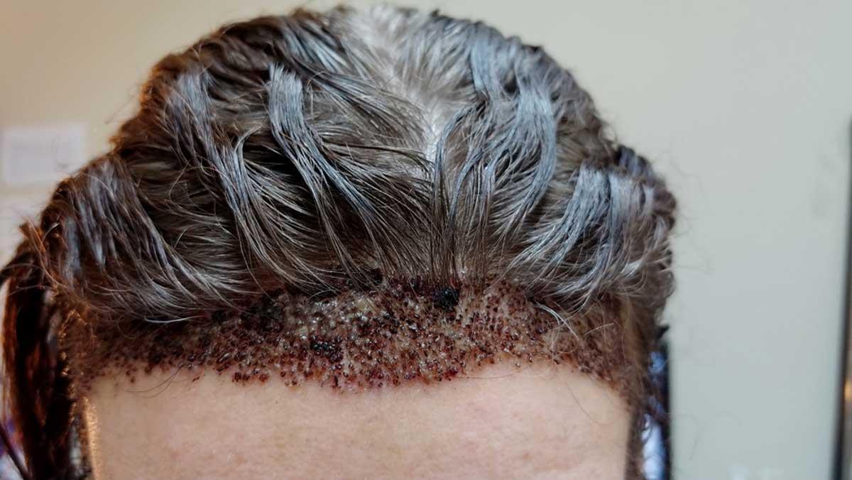 Saç Ekimi Sonrasında Kafa Derisi Üzerinde Kabuklanma