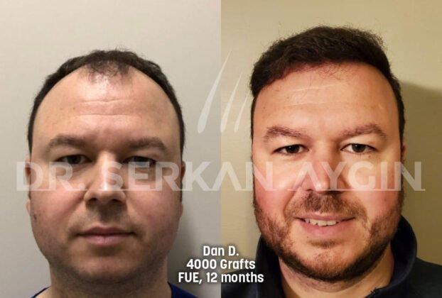 Serkan Aygın Saç Ekimi Öncesi ve Sonrası 1