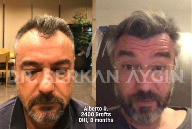 Serkan Aygın Saç Ekimi Öncesi ve Sonrası 2