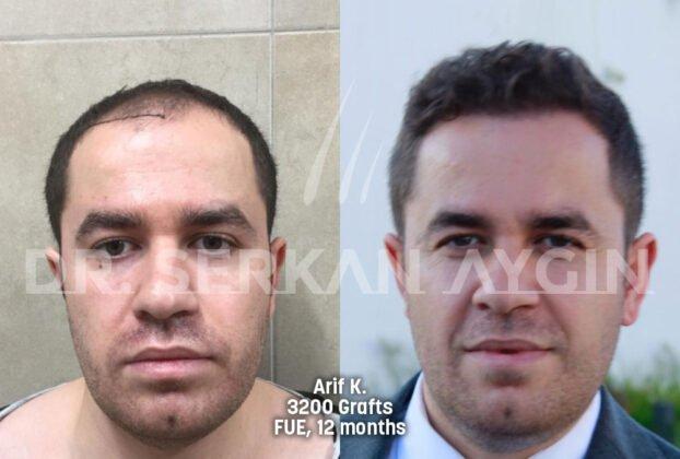 Serkan Aygın Saç Ekimi Öncesi ve Sonrası 4
