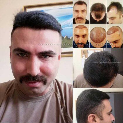 Asuman Hair Transplant Sa. Ekimi Öncesi ve sonrası 1