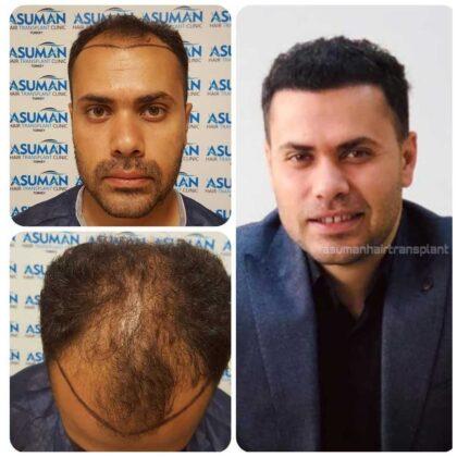 Asuman Hair Transplant Sa. Ekimi Öncesi ve sonrası 2