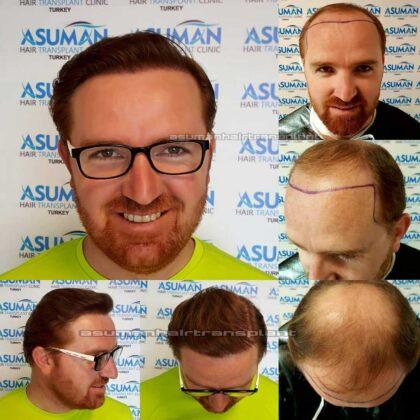 Asuman Hair Transplant Sa. Ekimi Öncesi ve sonrası 3
