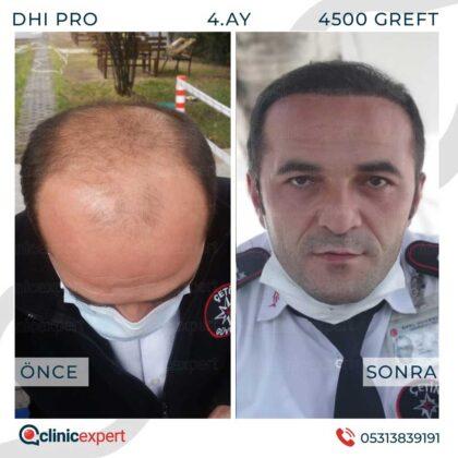 Clinicexpert Saç Ekimi Öncesi ve Sonrası 1