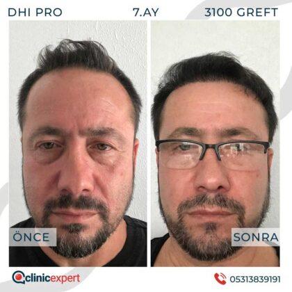 Clinicexpert Saç Ekimi Öncesi ve Sonrası 2