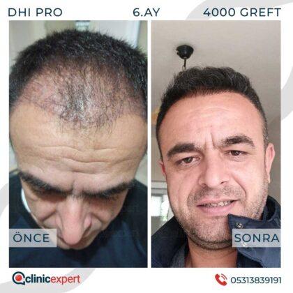 Clinicexpert Saç Ekimi Öncesi ve Sonrası 3