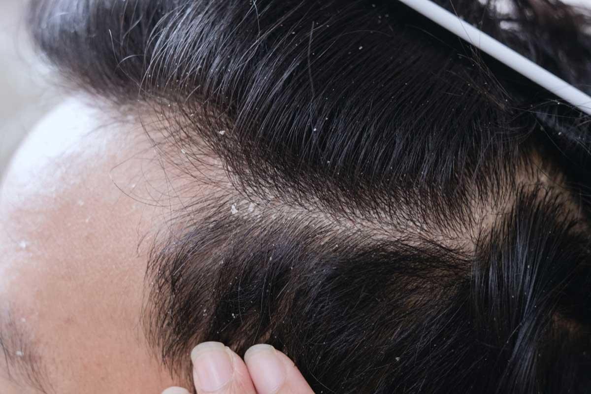 Saçkıran, Kepek Problemleri ve Saç Kazıtmak