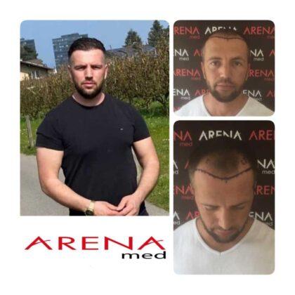 Arenamed Serkan Aydın Saç Ekimi Öncesi ve Sonrası 1