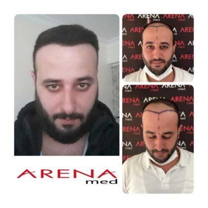 Arenamed Serkan Aydın Saç Ekimi Öncesi ve Sonrası 2