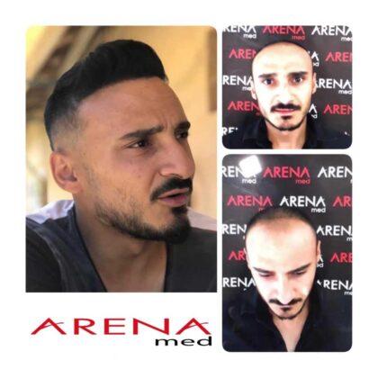 Arenamed Serkan Aydın Saç Ekimi Öncesi ve Sonrası 3