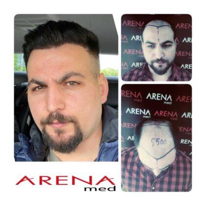 Arenamed Serkan Aydın Saç Ekimi Öncesi ve Sonrası 4