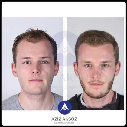Aziz Aksöz Saç Ekimi Öncesi ve Sonrası 2