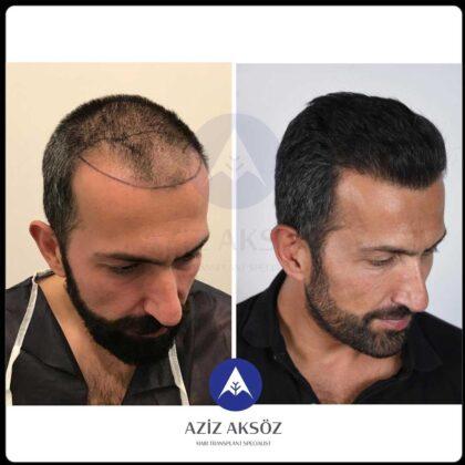 Aziz Aksöz Saç Ekimi Öncesi ve Sonrası 3
