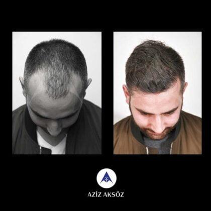 Aziz Aksöz Saç Ekimi Öncesi ve Sonrası 4
