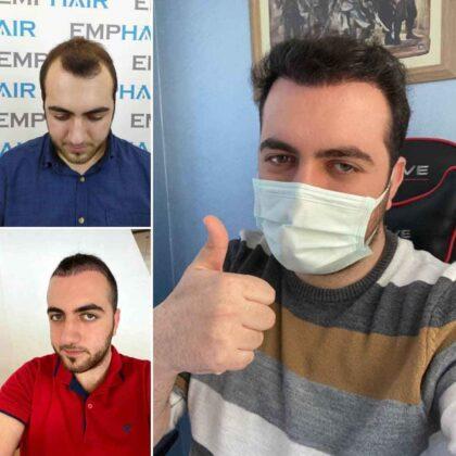 Emphair Saç Ekim Öncesi ve Sonrası 2