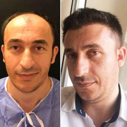 Emphair Saç Ekim Öncesi ve Sonrası 3