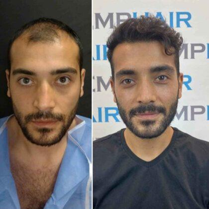 Emphair Saç Ekim Öncesi ve Sonrası 4