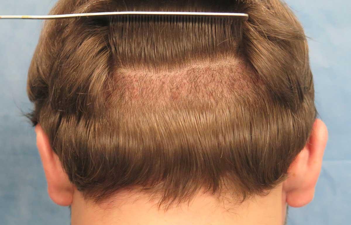 Saç Ekimi Sonrası Ense Düzelme Süresi