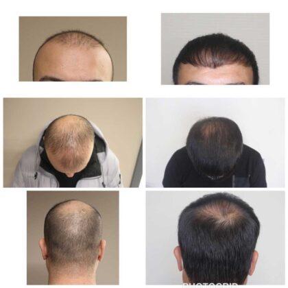 Serdar Gökrem Saç Ekimi Öncesi ve Sonrası 1