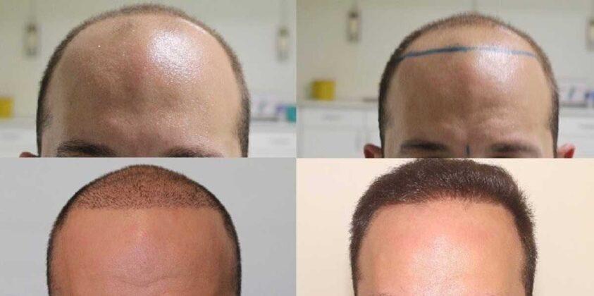 Serdar Gökrem Saç Ekimi Öncesi ve Sonrası 2