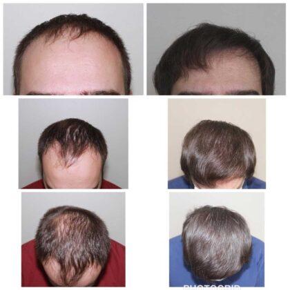 Serdar Gökrem Saç Ekimi Öncesi ve Sonrası 3
