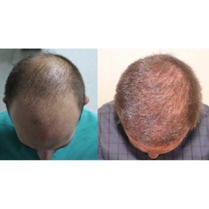 Serdar Gökrem Saç Ekimi Öncesi ve Sonrası 4