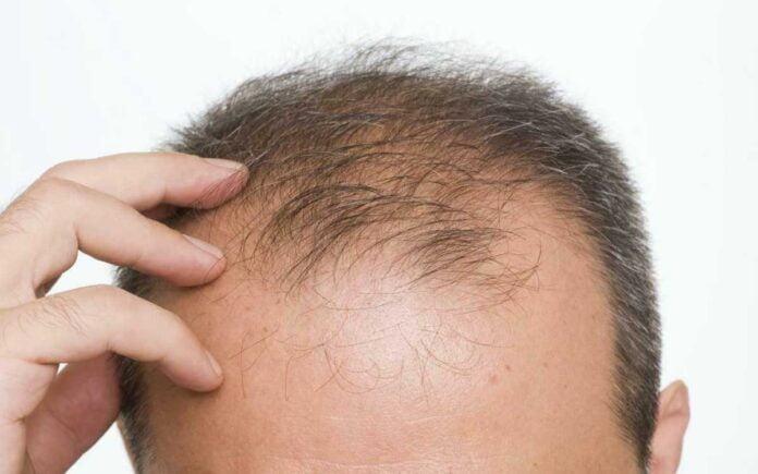 DHT Saç Dökülmesi