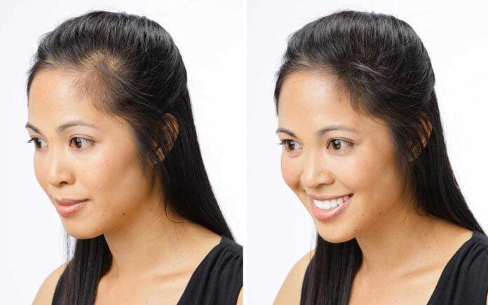 Kadınlarda Saç Ekimi Yaptıranlar