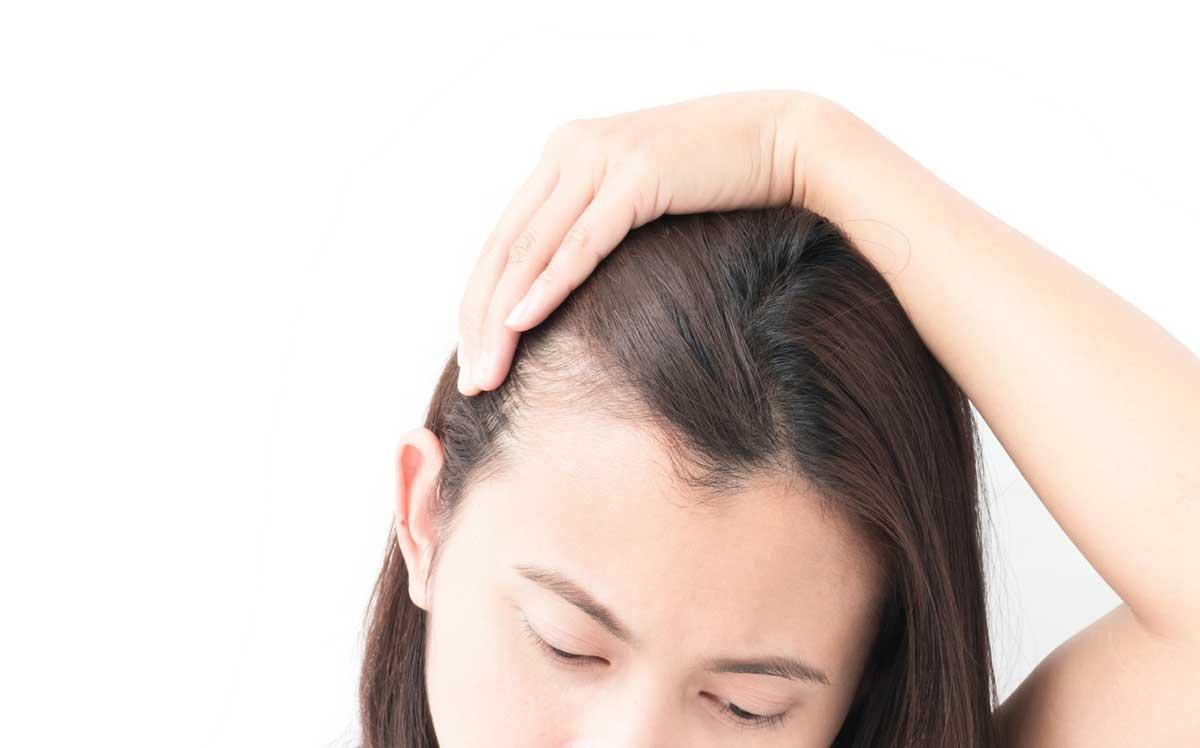 Kadınlarda Saç Ekimi Yaptırmak Mantıklı Mı?