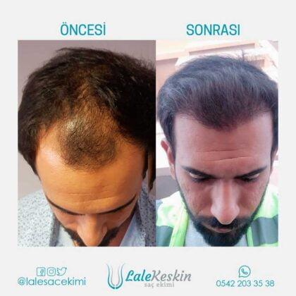 Lale Keskin Saç Ekimi Öncesi ve Sonrası 2
