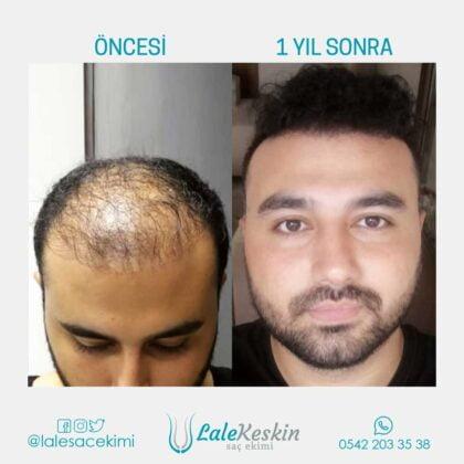 Lale Keskin Saç Ekimi Öncesi ve Sonrası 3